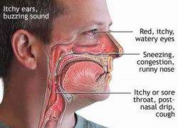allergic-rhinitis11